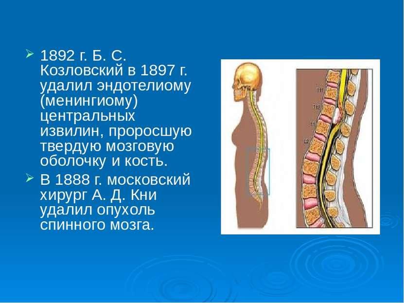 1892 г. Б. С. Козловский в 1897 г. удалил эндотелиому (менингиому) центральны...