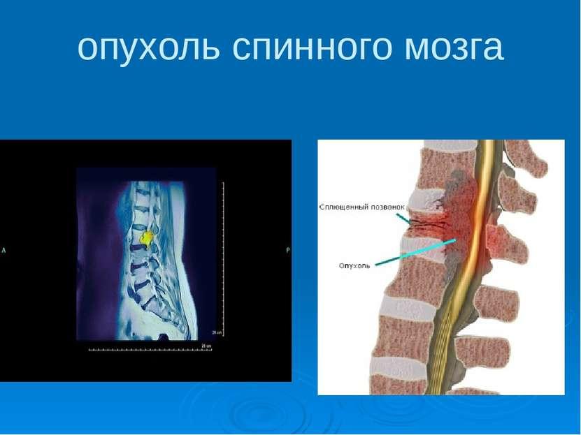 опухоль спинного мозга