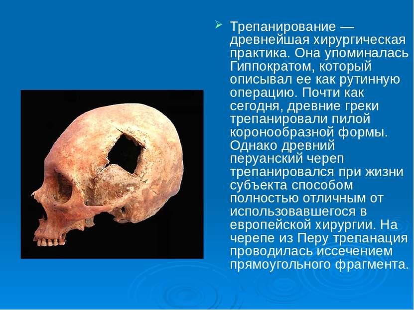 Трепанирование — древнейшая хирургическая практика. Она упоминалась Гиппократ...