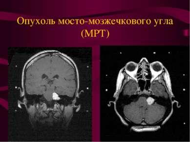Опухоль мосто-мозжечкового угла (МРТ)