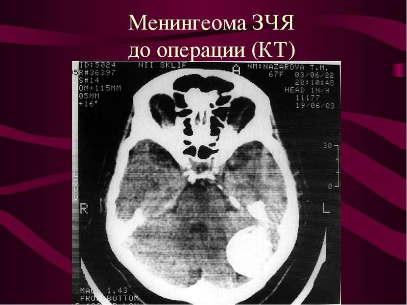 Менингеома ЗЧЯ до операции (КТ)