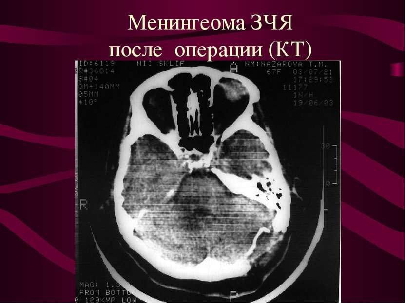 Менингеома ЗЧЯ после операции (КТ)