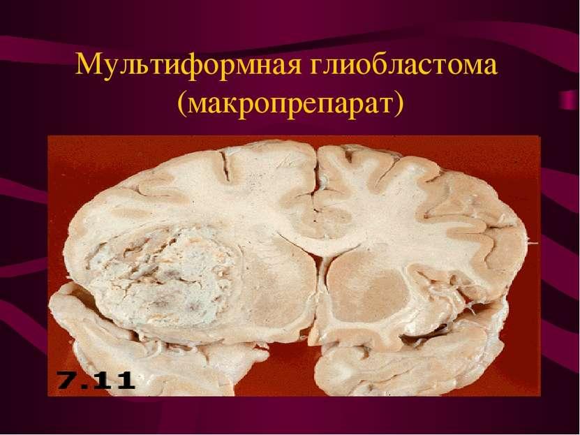 Мультиформная глиобластома (макропрепарат)