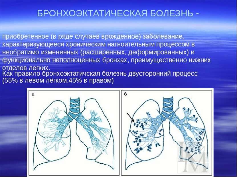 БРОНХОЭКТАТИЧЕСКАЯ БОЛЕЗНЬ - приобретенное (в ряде случаев врожденное) заболе...