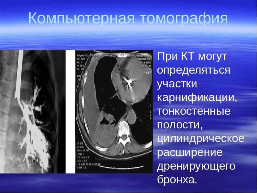 Компьютерная томография При КТ могут определяться участки карнификации, тонко...