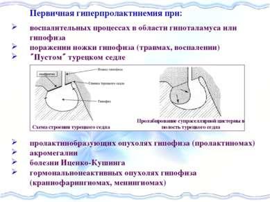 Первичная гиперпролактинемия при воспалительных процессах в области гипоталам...
