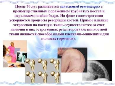 После 70 лет развивается синильный остеопороз с преимущественным поражением т...