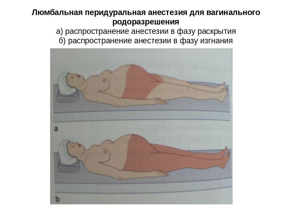 Люмбальная перидуральная анестезия для вагинального родоразрешения а) распрос...