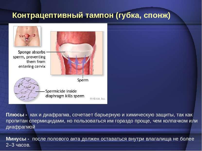 Контрацептивныйтампон (губка, спонж) Плюсы - как и диафрагма, сочетает барье...