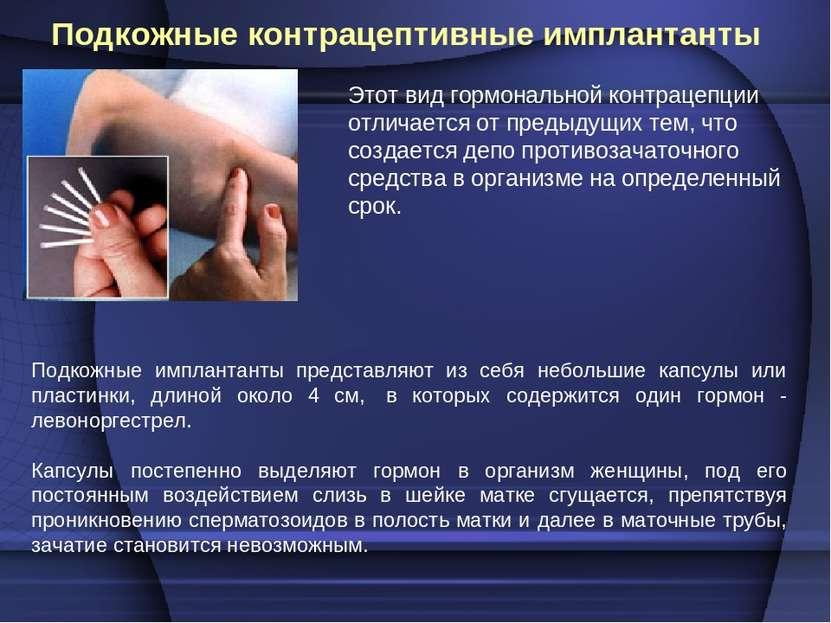Подкожные контрацептивные имплантанты Подкожные имплантанты представляют из с...