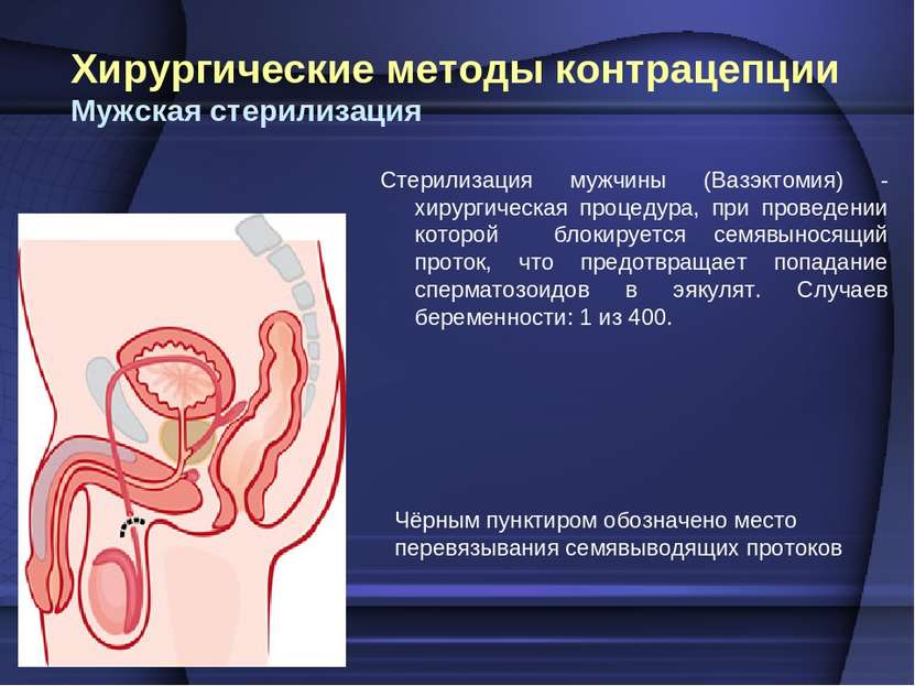 Хирургические методы контрацепции Мужская стерилизация Стерилизация мужчины (...