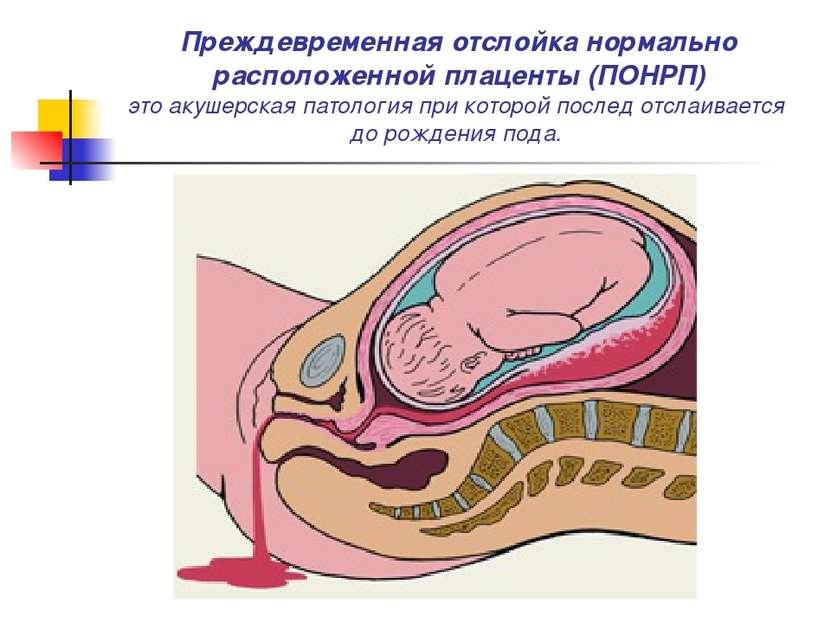 Преждевременная отслойка нормально расположенной плаценты (ПОНРП) это акушерс...