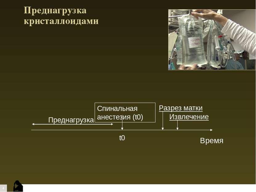 Преднагрузка кристаллоидами t0 Спинальная анестезия (t0) Разрез матки Извлече...