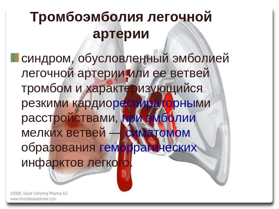 Тромбоэмболия легочной артерии синдром, обусловленный эмболией легочной артер...
