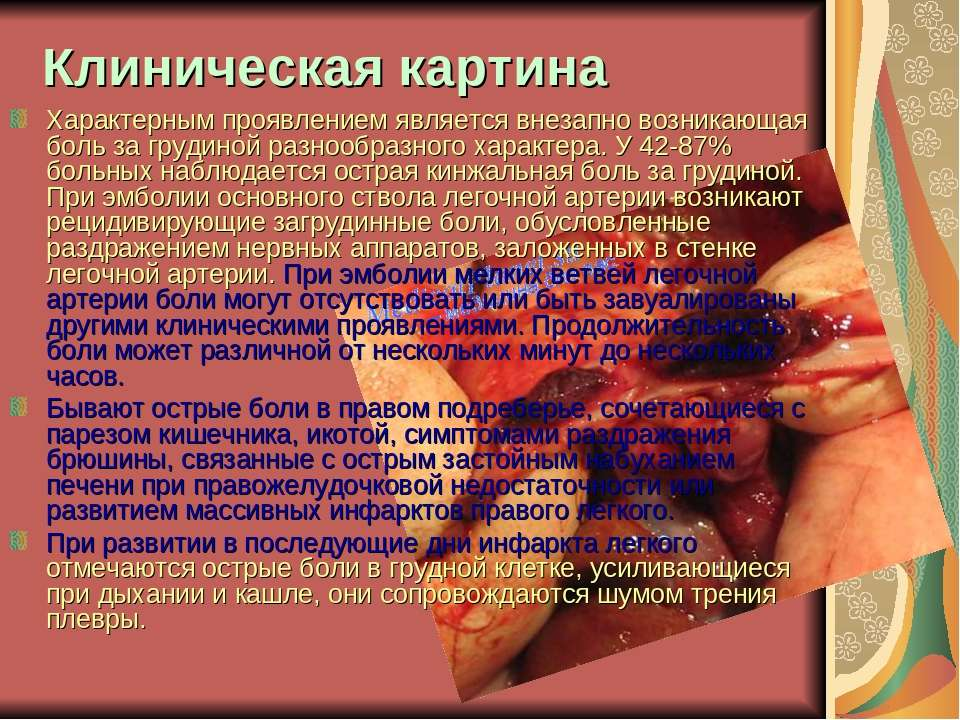 Клиническая картина Характерным проявлением является внезапно возникающая бол...
