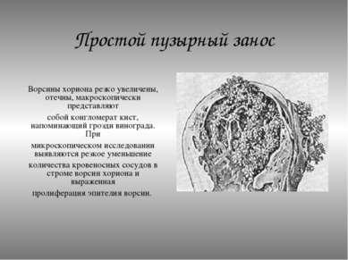 Простой пузырный занос Ворсины хориона резко увеличены, отечны, макроскопичес...
