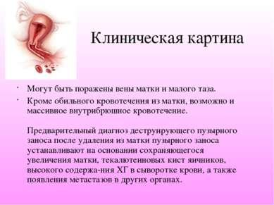 Клиническая картина Могут быть поражены вены матки и малого таза. Кроме обиль...