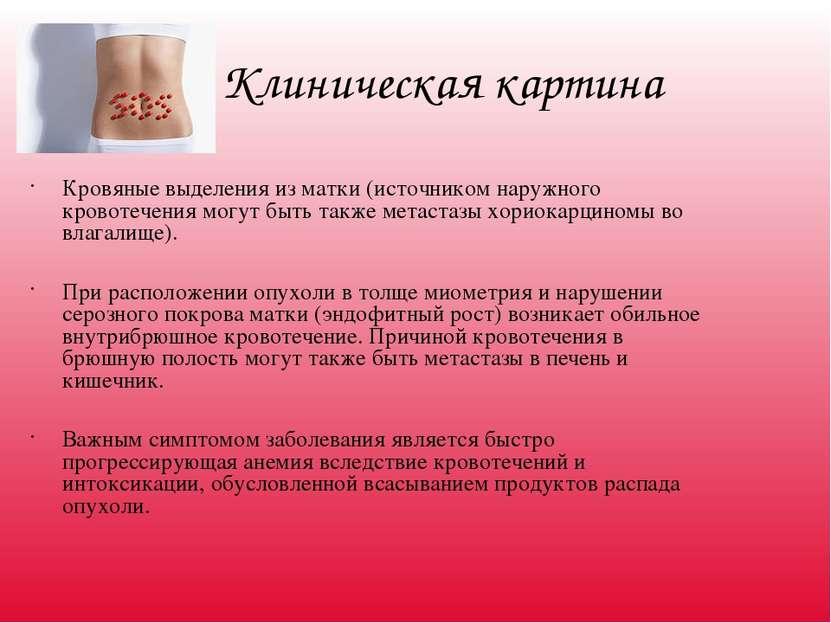 Клиническая картина Кровяные выделения из матки (источником наружного кровоте...