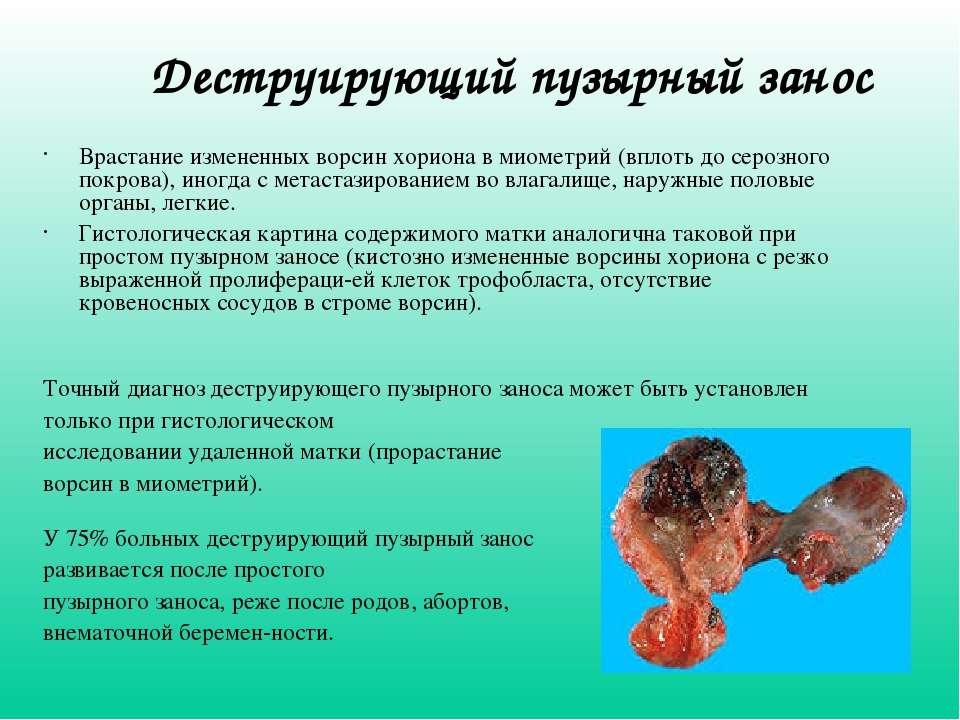 Деструирующий пузырный занос Врастание измененных ворсин хориона в миометрий ...
