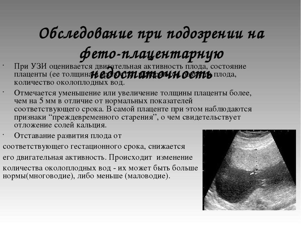 Обследование при подозрении на фето-плацентарную недостаточность При УЗИ оцен...