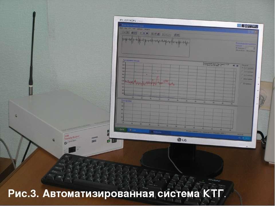 Рис.3. Автоматизированная система КТГ.