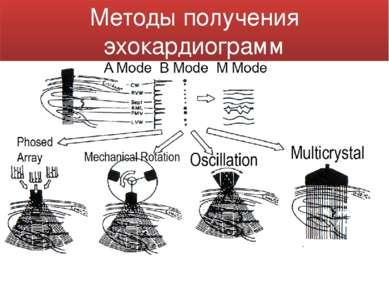 Методы получения эхокардиограмм