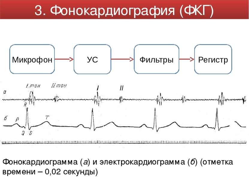 Фонокардиограмма (a) и электрокардиограмма (б) (отметка времени – 0,02 секунд...