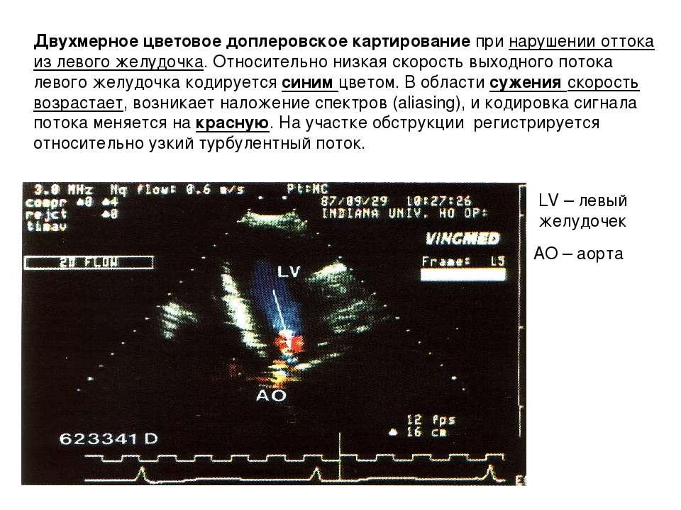 Двухмерное цветовое доплеровское картирование при нарушении оттока из левого ...