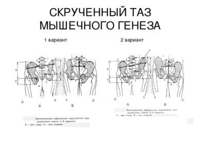 СКРУЧЕННЫЙ ТАЗ МЫШЕЧНОГО ГЕНЕЗА 1 вариант 2 вариант