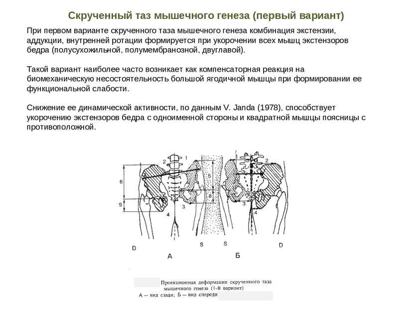 При первом варианте скрученного таза мышечного генеза комбинация экстензии, а...
