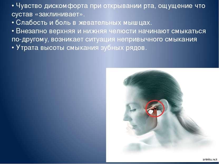 • Чувство дискомфорта при открывании рта, ощущение что сустав «заклинивает». ...