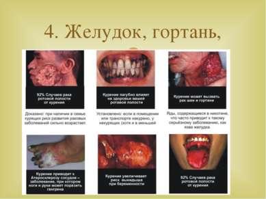 4. Желудок, гортань, язык