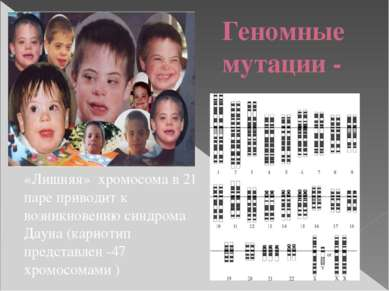 Геномные мутации - «Лишняя» хромосома в 21 паре приводит к возникновению синд...