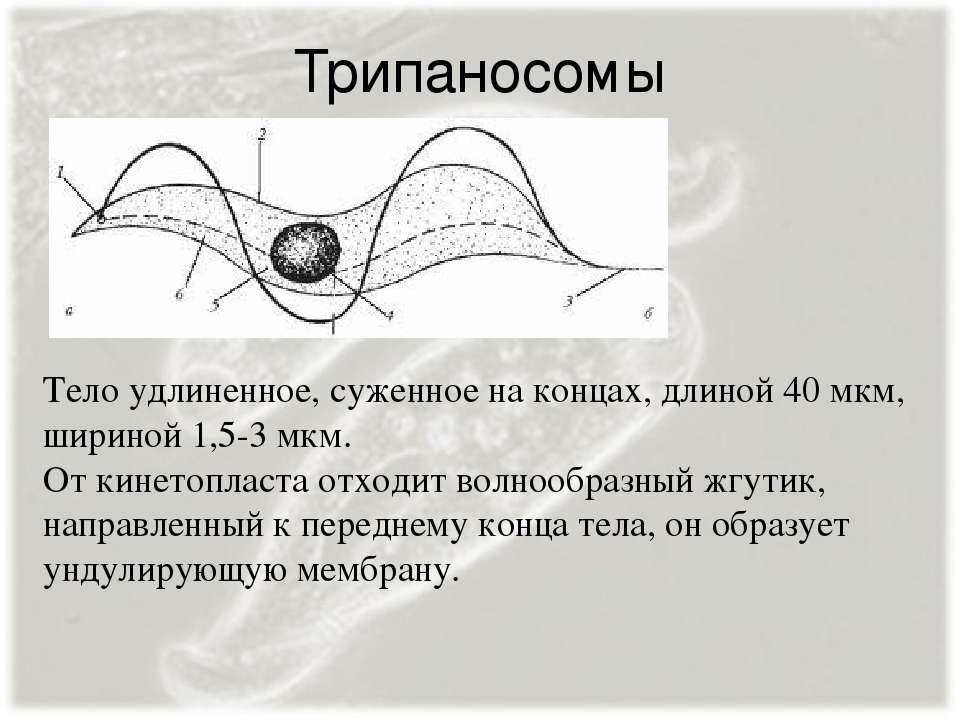 Трипаносомы Тело удлиненное, суженное на концах, длиной 40 мкм, шириной 1,5-3...