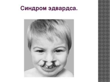 Синдром эдвардса.