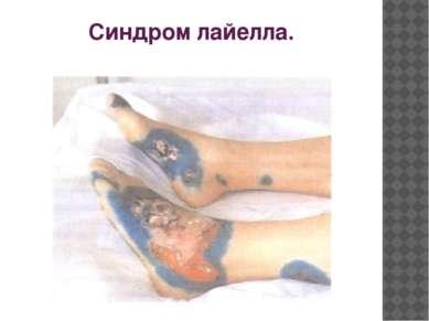 Синдром лайелла.