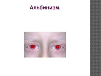 Альбинизм.