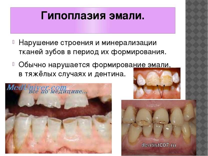 Гипоплазия эмали. Нарушение строения и минерализации тканей зубов в период их...