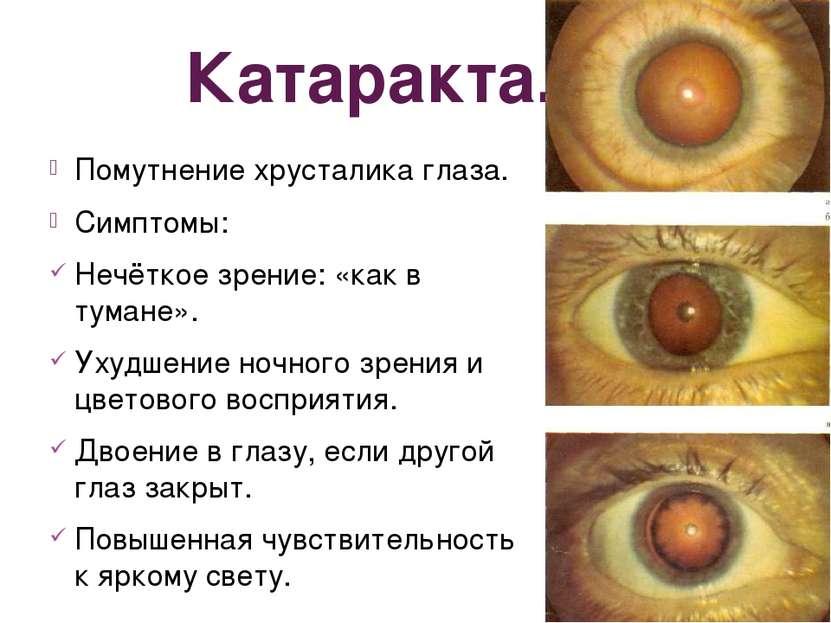 Катаракта. Помутнение хрусталика глаза. Симптомы: Нечёткое зрение: «как в тум...