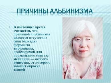 В настоящее время считается, что причиной альбинизма является отсутствие (или...