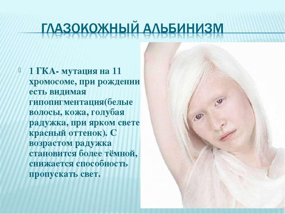 1 ГКА- мутация на 11 хромосоме, при рождении есть видимая гипопигментация(бел...