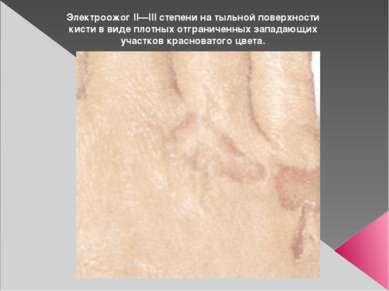Электроожог II—III степени на тыльной поверхности кисти в виде плотных отгран...