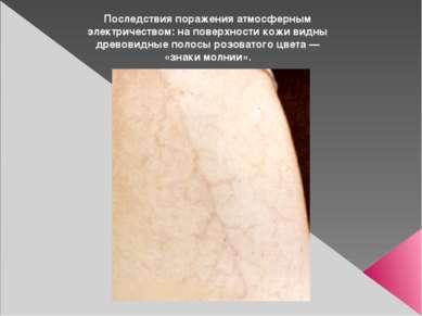 Последствия поражения атмосферным электричеством: на поверхности кожи видны д...