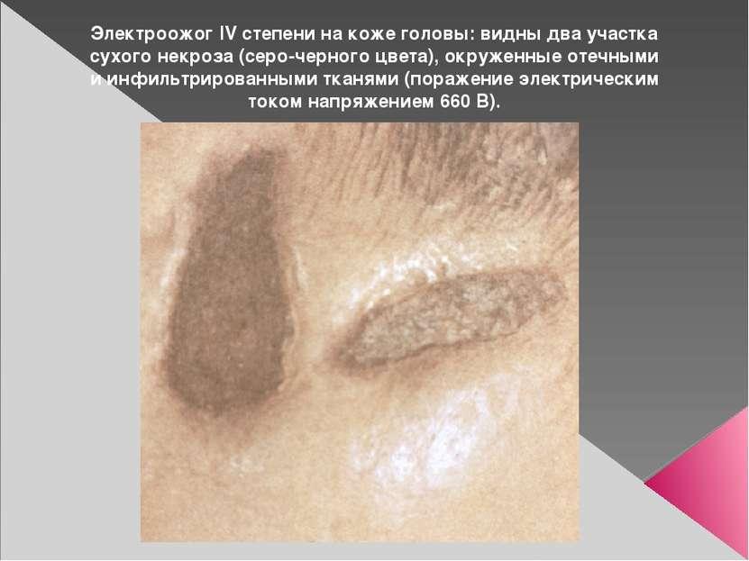 Электроожог IV степени на коже головы: видны два участка сухого некроза (серо...