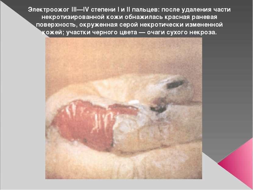 Электроожог III—IV степени I и II пальцев: после удаления части некротизирова...