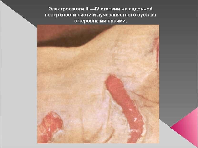 Электроожоги III—IV степени на ладонной поверхности кисти и лучезапястного су...