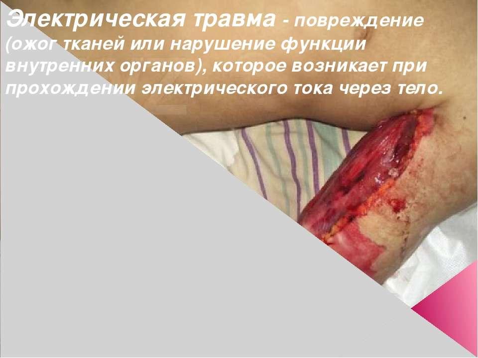 Электрическая травма - повреждение (ожог тканей или нарушение функции внутрен...