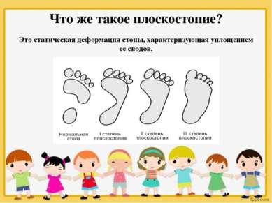 Что же такое плоскостопие? Это статическая деформация стопы, характеризующая ...