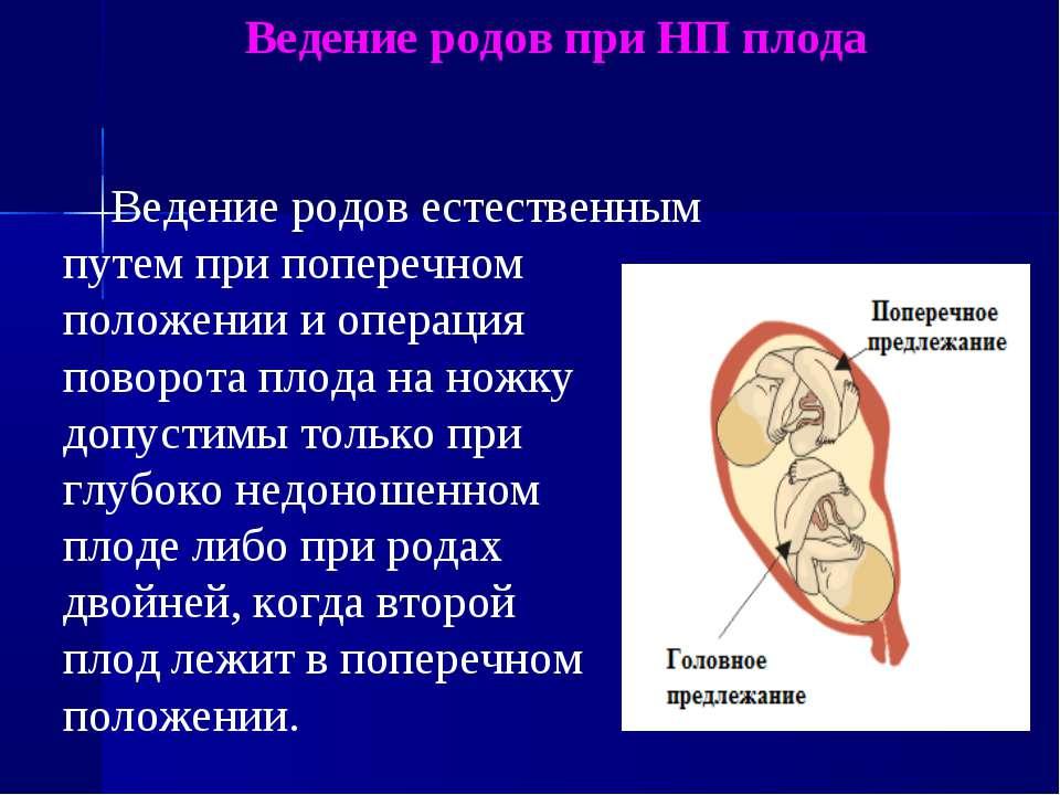 Ведение родов при НП плода Ведение родов естественным путем при поперечном по...