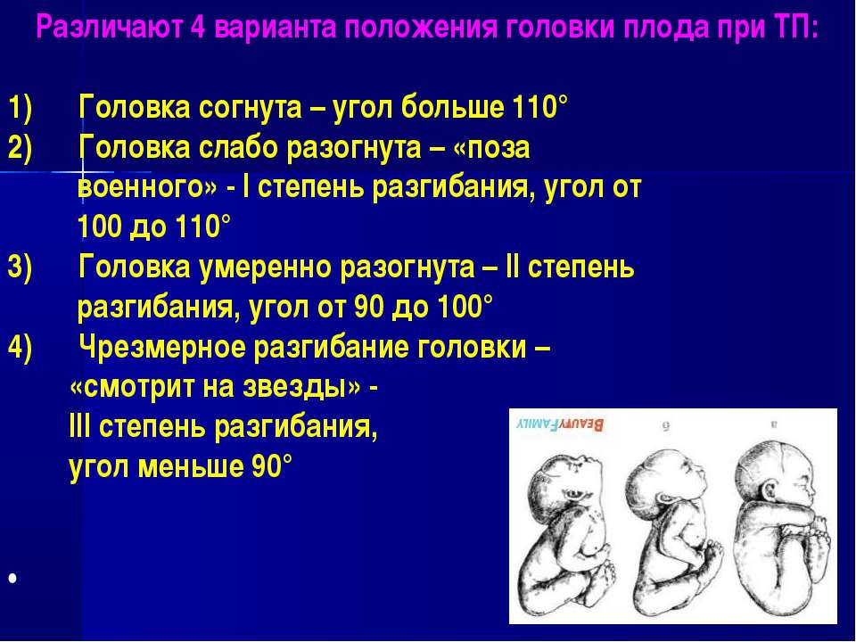 Различают 4 варианта положения головки плода при ТП: Головка согнута – угол б...